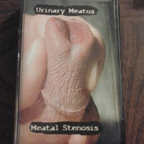 "URINARY MEATUS ""meatal stenosis"" cs"