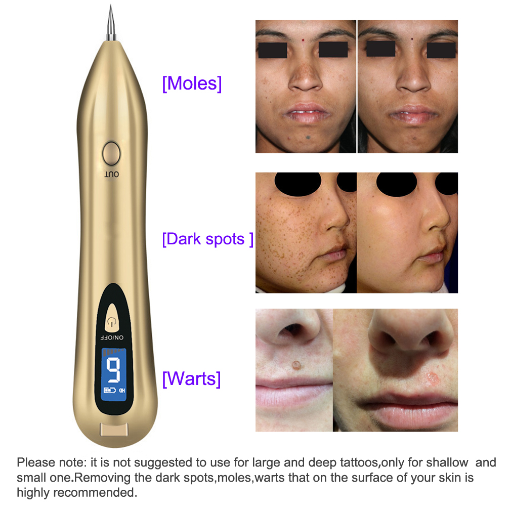 Mole removal pen professional body face skin tags spots for Tattoo mole on face