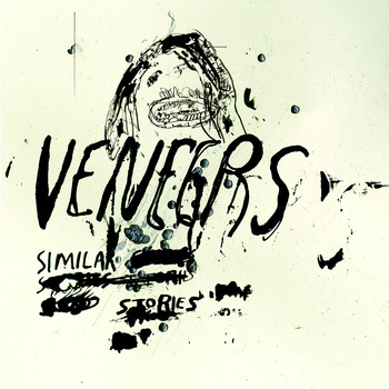 veneers 'similar stories' 12""